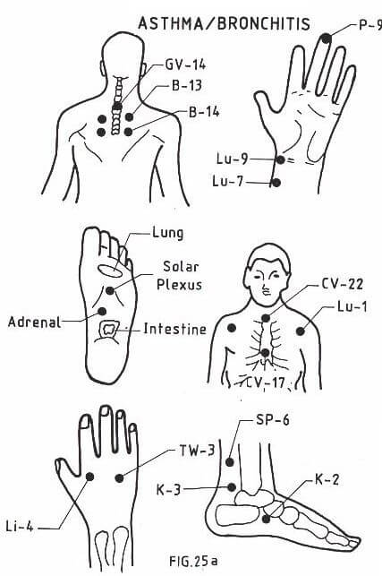 acupressure points asthma and bronchitis