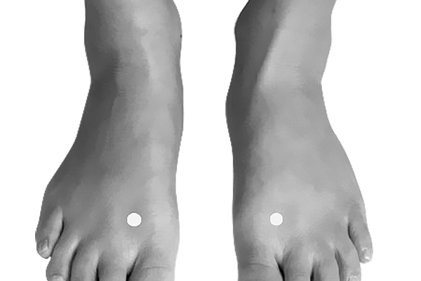 Acupressure Point: Great Surge (Lv3, Liver 3, Tai Chong)